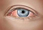 Moderate allergic conjunctivitis