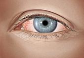 Mild allergic conjunctivitis
