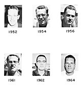 Acromegaly progression, 1952-1964