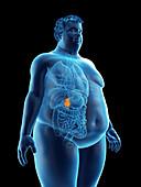 Illustration of an obese man's gallbladder