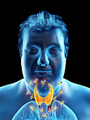Illustration of an autoimmune thyroid disease