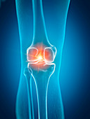 Illustration of a painful knee