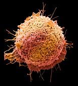 Colorectal cancer cell, sem
