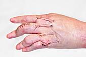 Hand joint fusion scars in rheumatoid arthritis