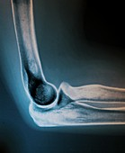 Normal elbow joint,X-ray