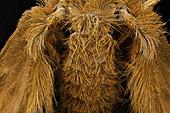 Sewer fly abdomen,SEM