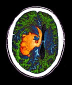 Intraparenchymal haemorrhage,CT scan
