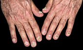 Fungal infection of the fingernails