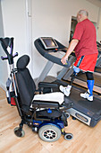 Man with prosthetic limb using a treadmill at the gym