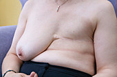 Woman who has had a mastectomy as a result of breast cancer