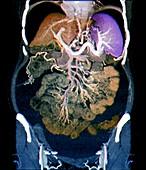 Swollen abdomen in cirrhosis,CT scan