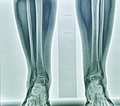 Tibial deviation,X-ray