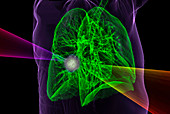 Lung cancer radiotherapy,3D CT-based illustration