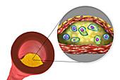 Atheromatous plaque in artery,illustration
