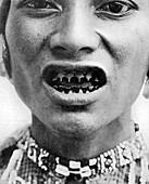 A Bagobo, with filed teeth