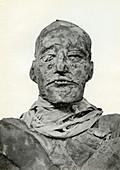 Head of the mummy of Rameses III, Ancient Egyptian pharaoh