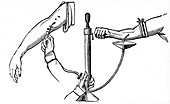 Person-to person blood transfusion, 1833