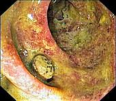 Large intestine in ulcerative colitis, colonoscopy image