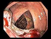 Colon cancer, colonoscopy image