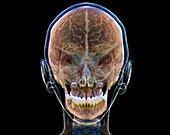 Normal human brain, 3D CT scan