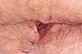 Pilonidal sinus and deep abscess