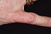 Contact dermatitis due to jewellery