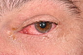 Bacterial conjunctivitis in HIV patient