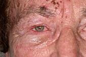 Shingles rash affecting facial nerve