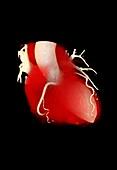 Coronary artery disease, 3D CT scan