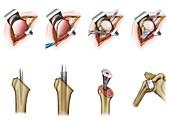 Humeral prosthesis shoulder surgery, illustration