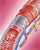 Polyposis of the small intestine, illustration
