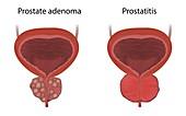 Prostate adenoma and prostatitis, illustration