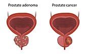 Prostate cancer and adenoma, illustration