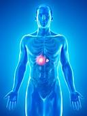Adrenal gland tumour, conceptual illustration