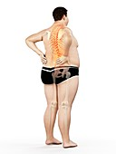 Obese man with back pain, illustration