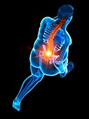 Obese runner with back pain, illustration