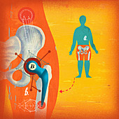 Close up of broken hip replacement, illustration