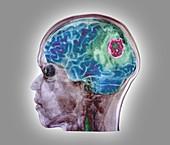 Brain tumour, 3D MRI