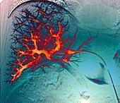 Liver blood vessels, angiogram