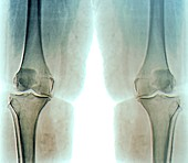 Knee osteoarthritis in obesity, X-ray
