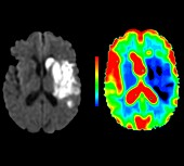 Brain damage due to a stroke, MRI scans