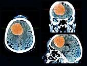 Meningioma brain cancer, CT scans