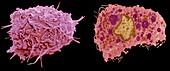 Macrophage, SEM-TEM comparison