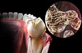 Plaque formation on teeth, illustration