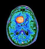 Meningioma brain tumour, MRI