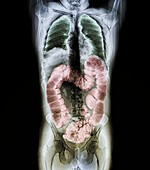 Normal colon, CT scan