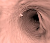 Colorectal polyp, 3D CT scan