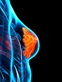 Breast disease, conceptual illustration