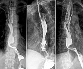Cancer of the oesophagus,X-rays