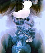 Stomach in bariatric surgery,X-ray